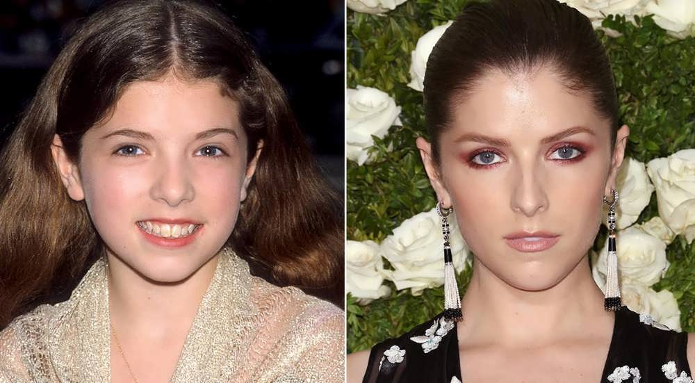 Did Anna Kendrick Have A Nose Job?