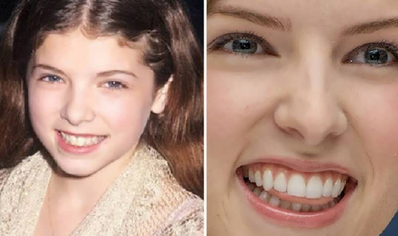 Did Anna Kendrick Get Dental Work On Her Teeth?