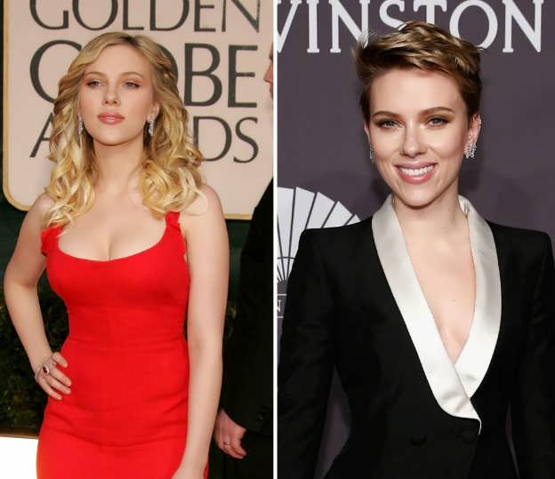 Has Scarlett Had A Breast Reduction Surgery?