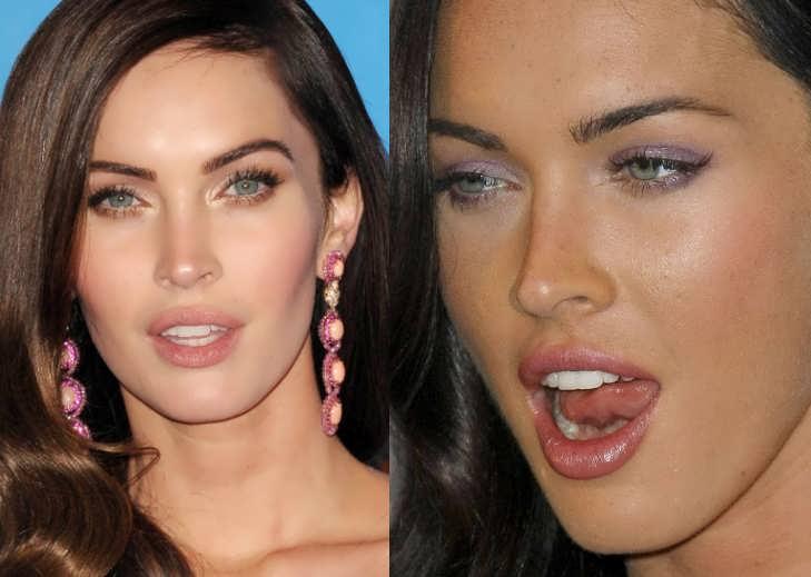 Did Megan Fox Get Lip Injections?