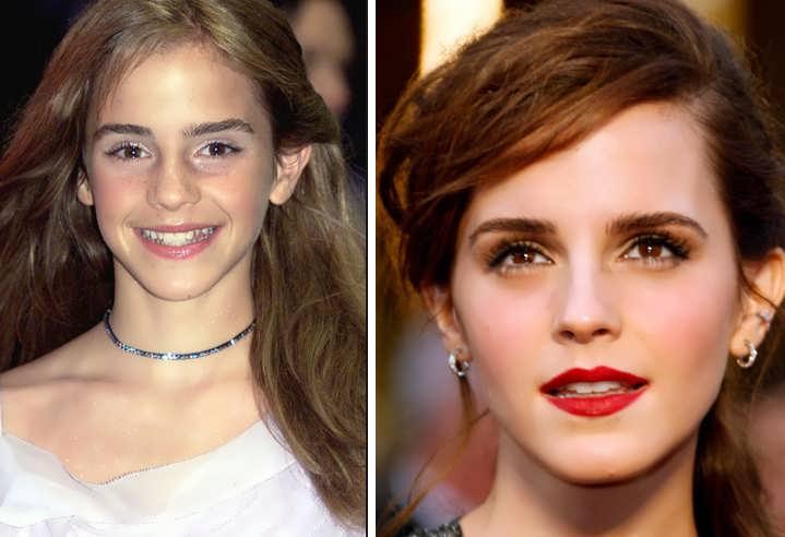 Has Emma Watson Had a Nose Job