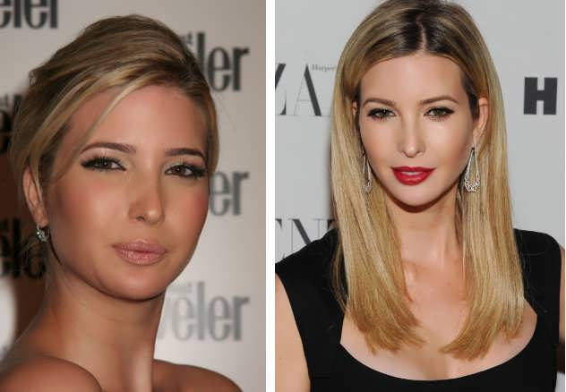 Did Ivanka Have Chin Implant