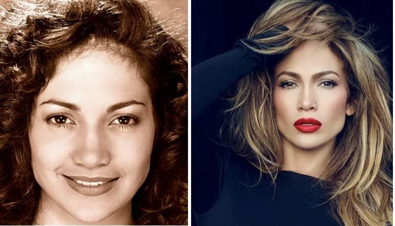 Did Jennifer Lopez Have A Nose Job