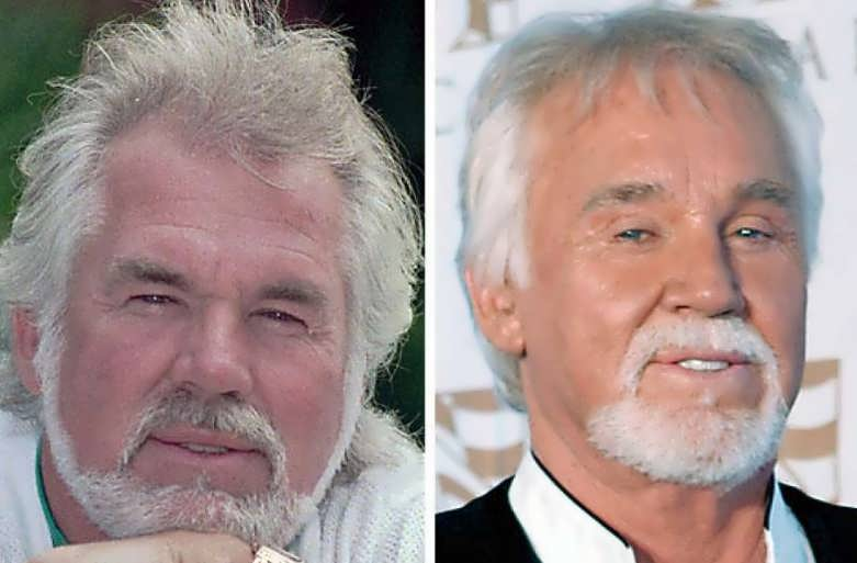 Kenny Roger Plastic Surgery Before and After