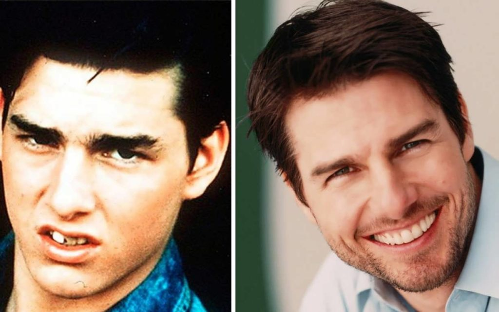 Tom Cruise's Teeth