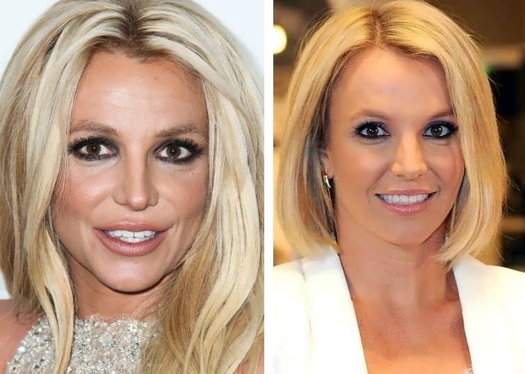 Did Britney Spears Have Facelift & Botox On Her Face
