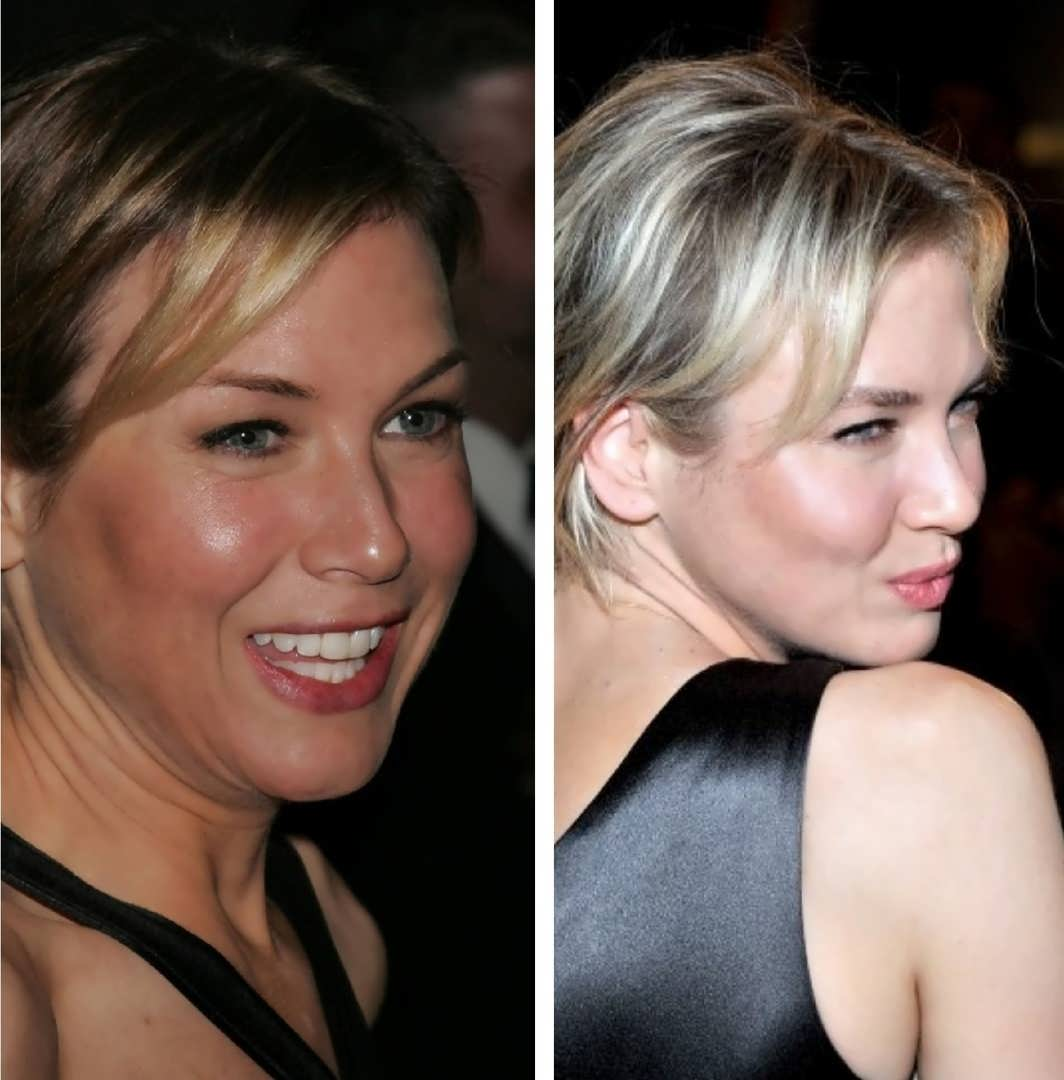 Did Renee Zellweger Have A Facelift