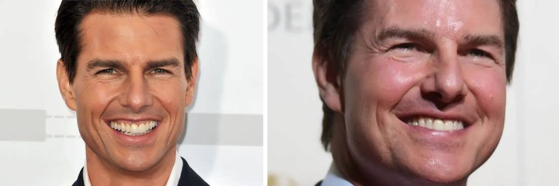 0Has Tom Cruise Had A Facelift