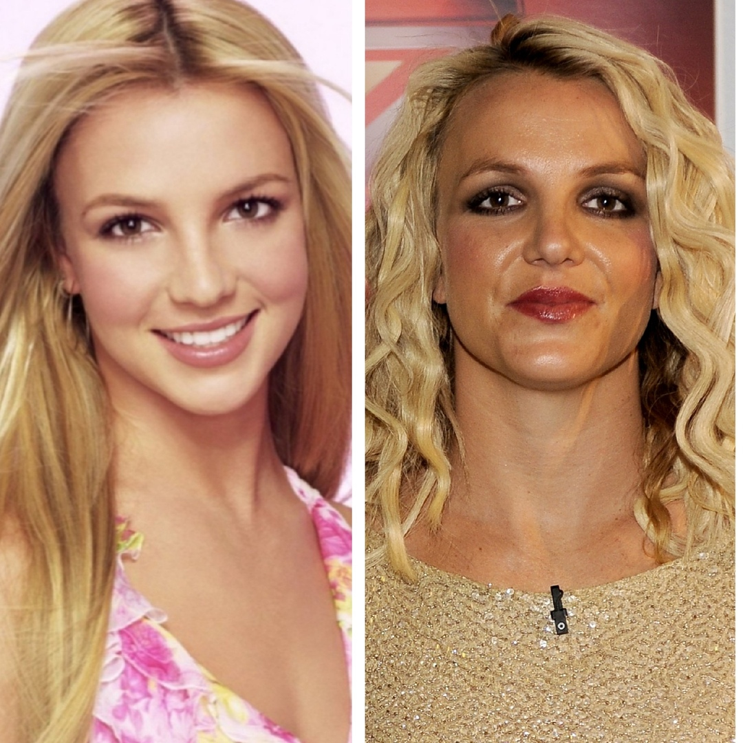 Did Britney Spears Get Lip Injections