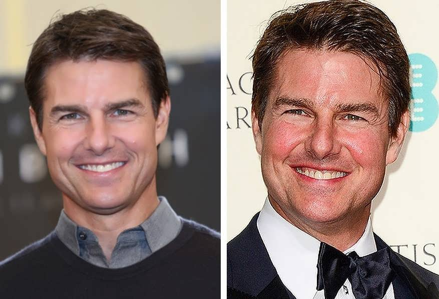 Did Tom Cruise Get Botox Injections