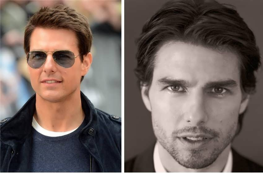 Did Tom Cruise Get Hair Transplant