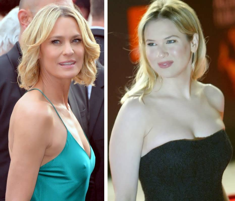 Does Renee Zellweger Have A Boob Job