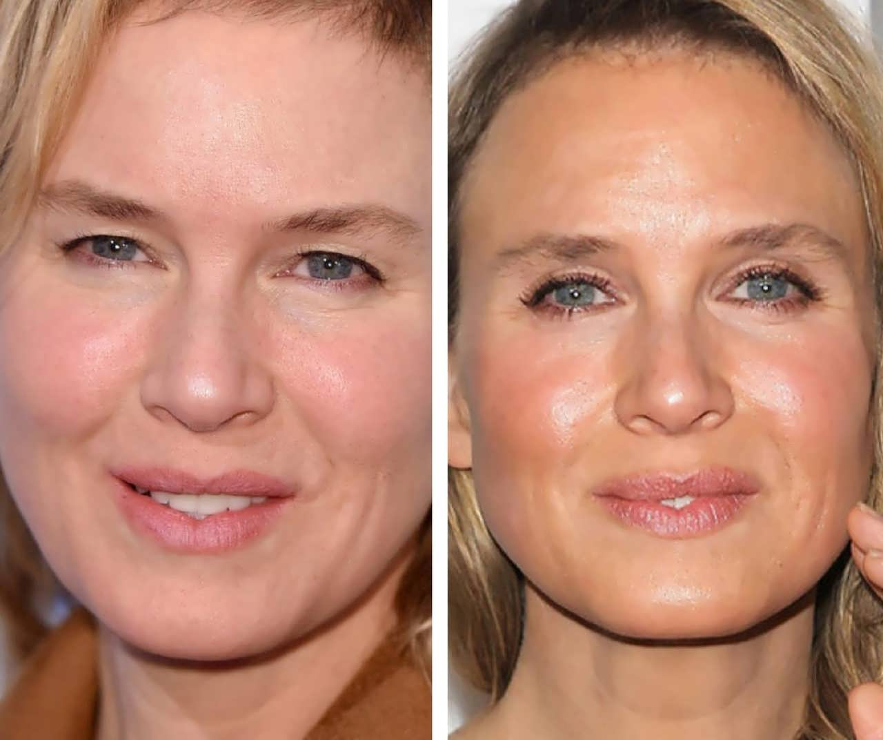Did Renee Zellweger Get An Eye Surgery