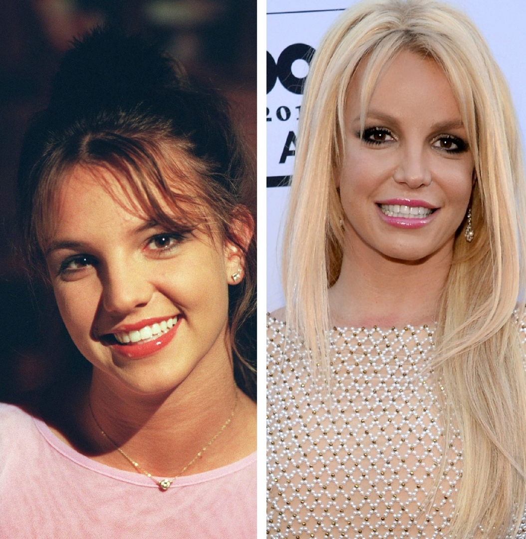 Has Britney Spears Had A Nose Job