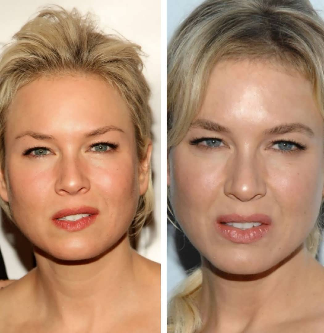 Has Renee Zellweger Had Botox Fillers
