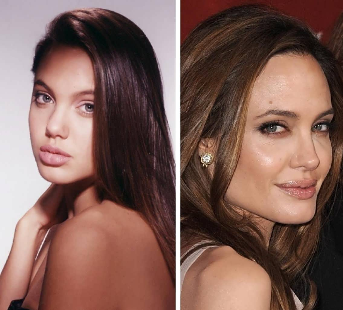Angelina Jolie rhinoplasty before and after