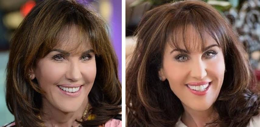Did Robin Mcgraw Have Facelift