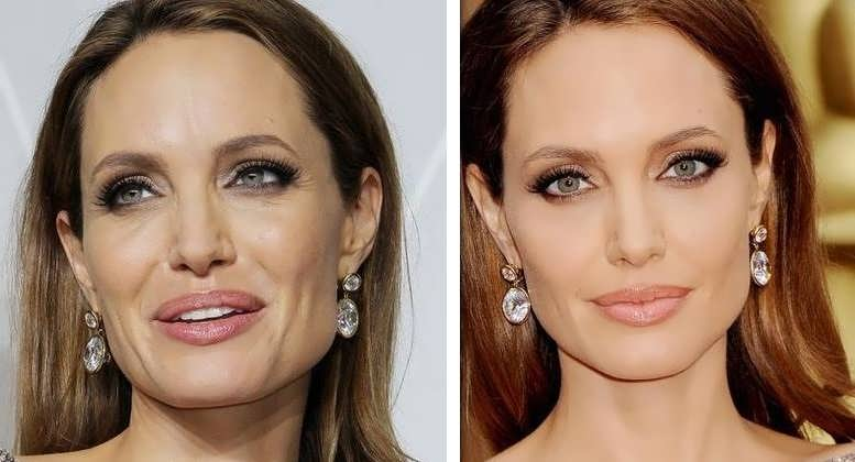 Angelina Jolie botox and facelift - Before and After