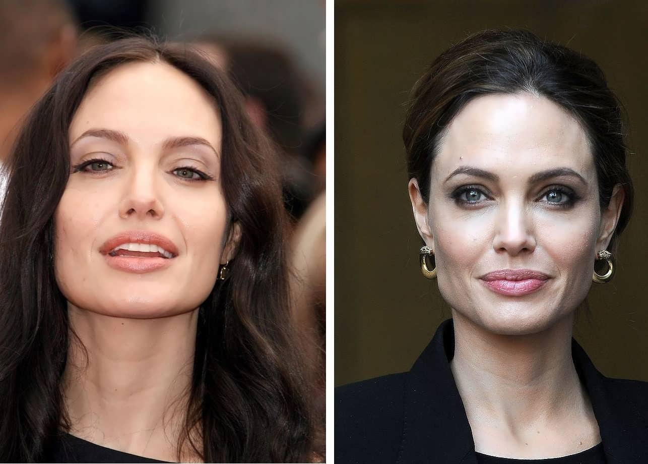 Angelina Jolie chin implant before and after