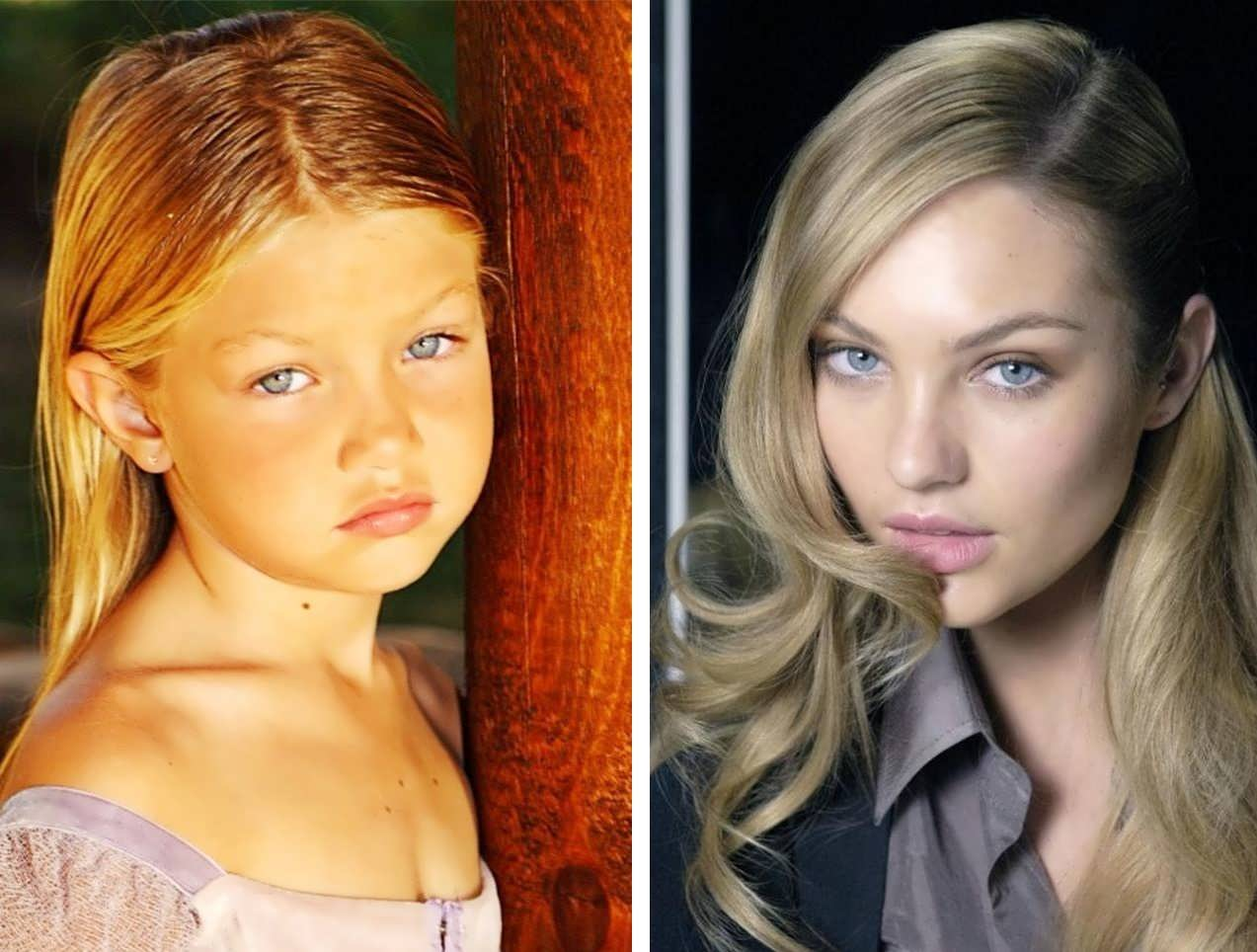 Gigi Hadid's Lips Before and After