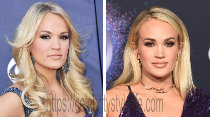 Carrie Underwood lip injections before and after?