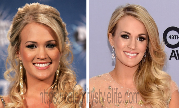 Carrie Underwood teeth before and after